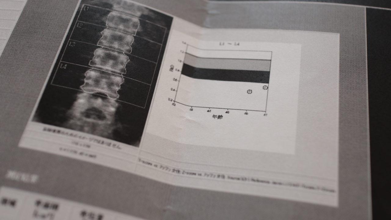 骨粗鬆症治療の新薬「イベニティ」治療経過レポート